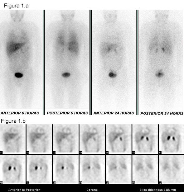 Figura 1:Figura 1.a) El estudio de 123 I-MIBG sobre cuerpo completo, realizado a las 5 y 24 horas, muestra intensa captación patológica en ambas suprarrenales que aumenta en las imágenes tardías. No se observan acúmulos extraadrenales.Figura 1.b) Los cortes coronales del estudio tomográfico realizado a las 24 horas muestran captación patológica de alta intensidad en suprarrenal derecha y de moderada intensidad en la izquierda.