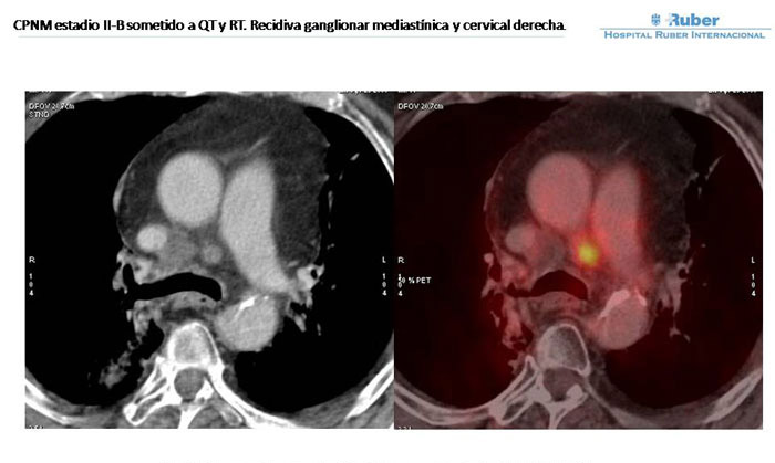 You are browsing images from the article: PET-TAC en la re-stadificaci�n del CPNM: importancia del uso del TAC diagn�stico.