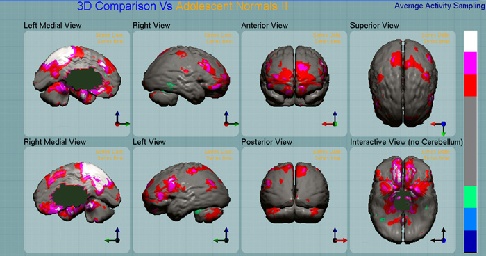 You are browsing images from the article: Neurospect: Imagenolog�a funcional en Psiquiatr�a.