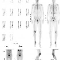Gammagrafía ósea en 3 fases en un paciente con Síndrome de